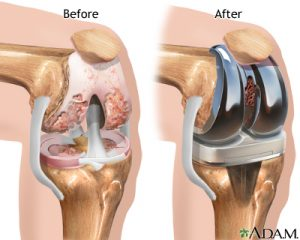 knee-replacement-300x240