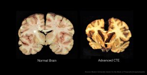 Chronic_Traumatic_Encephalopathy-300x153